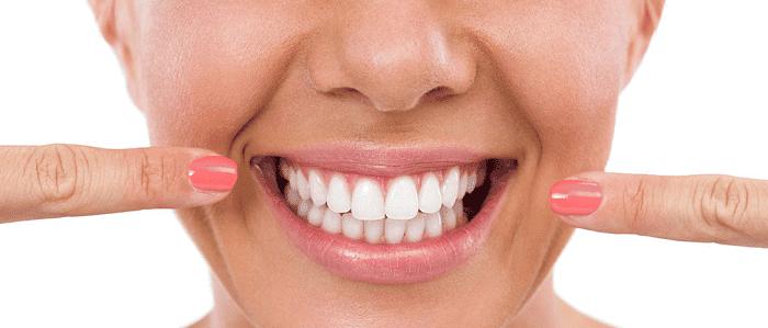 Làm răng sứ đẹpở đâu tốt nhất?