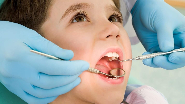 Có nên khám răng định kỳ cho trẻ không?