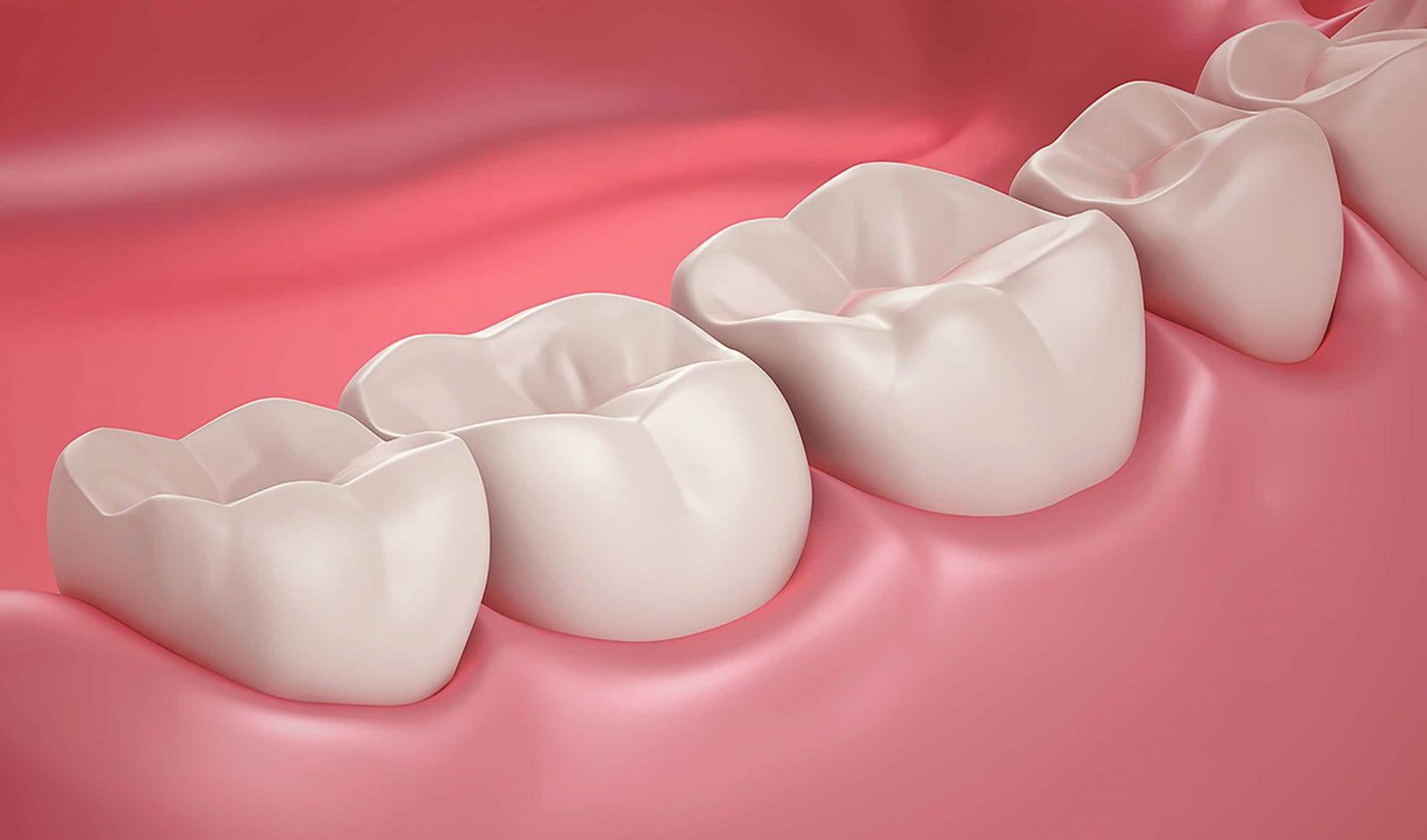 Bị mất răng hàm có sao không? Nguyên nhân và cách khắc phục hiệu quả   Dr.  Care