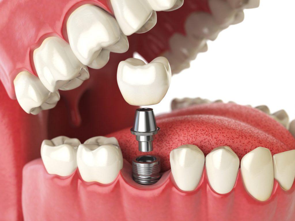 Trồng răng Implant - Nha Khoa Quốc Tế Tâm An