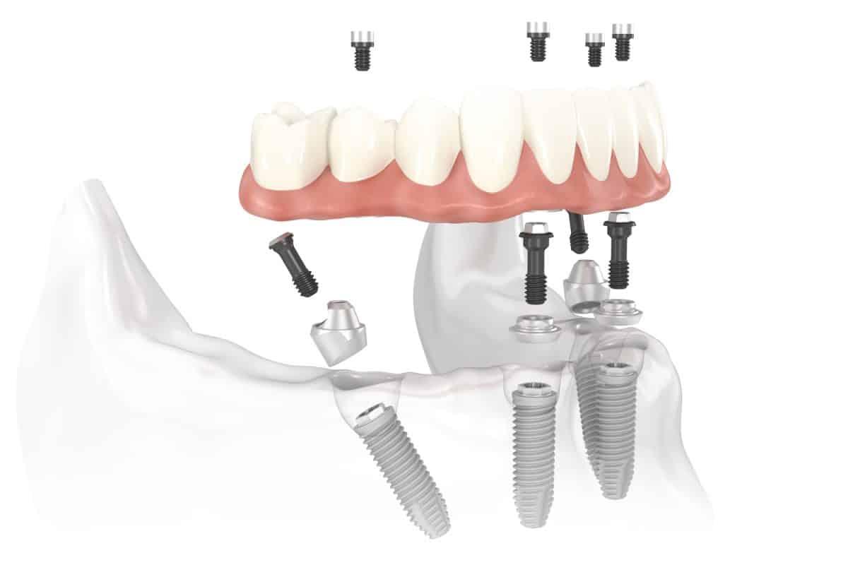 Trồng răng implant all on 4 giải pháp tốt nhất cho người mất răng toàn hàm